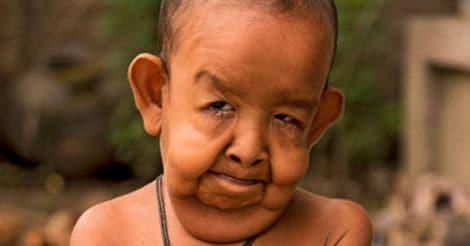 Progeria Boy