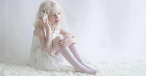 albino-3
