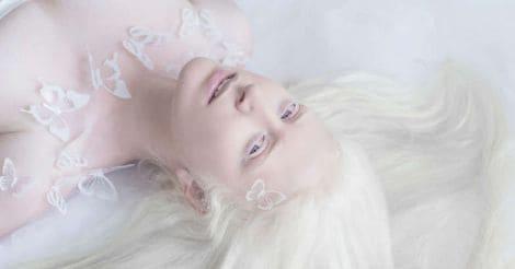 albino-4
