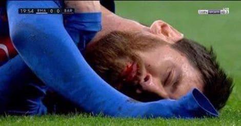 Messi-Hurt-1