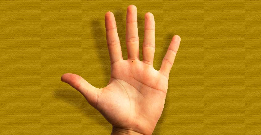 black-mole-on-palm