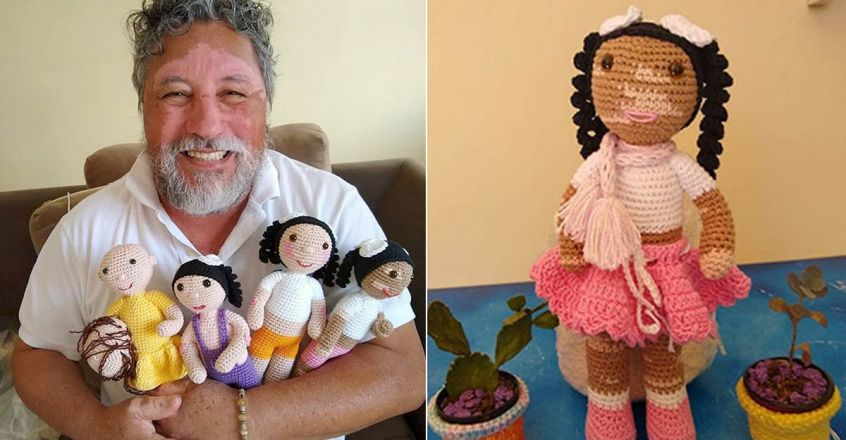 vitiligo-grandfather-knits-dolls-to-make-children-with-this-condition-feel-better