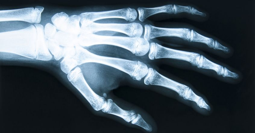 invention-of-x-ray-technology