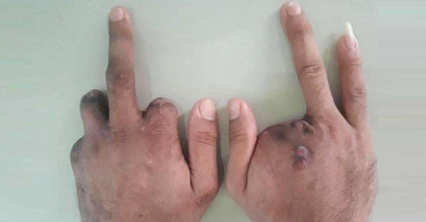 malaysia-hand-chopped