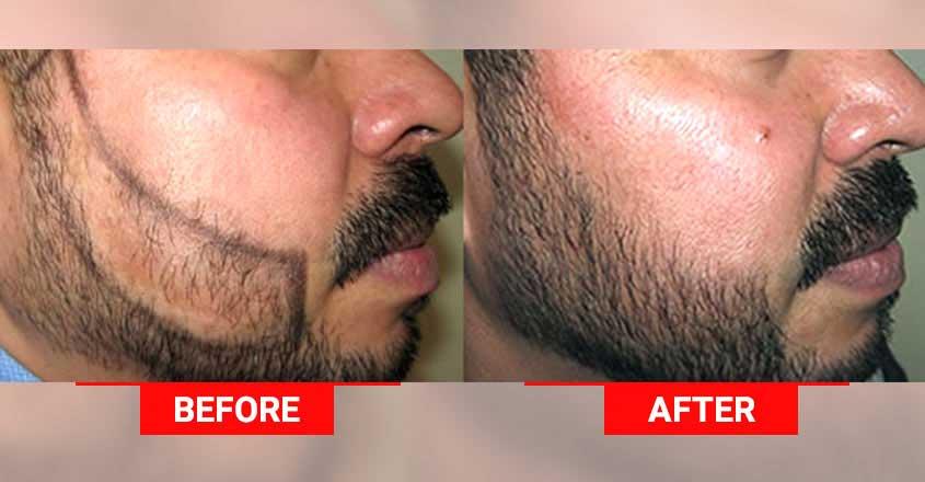 medlonges-beard-transplant-photo-procedure
