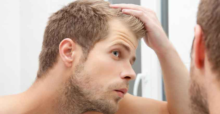 baldness hair loss male alopecia