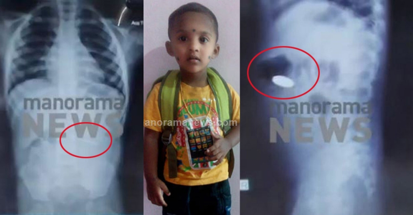 1200-coin-swallowing-kid-xray
