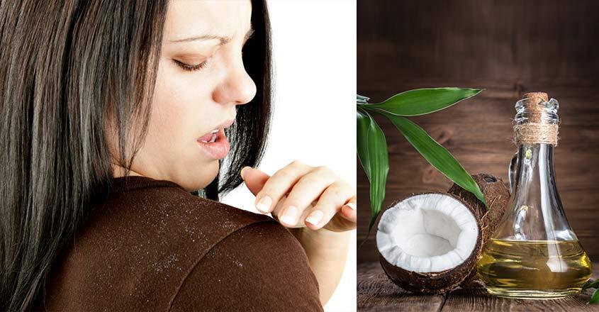 use-coconut-oil-to-treat-dandruff