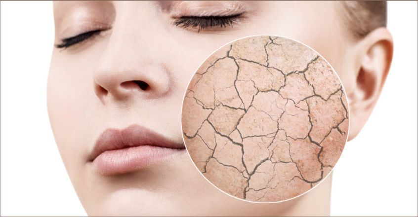 these-are-the-reasons-of-dry-skin