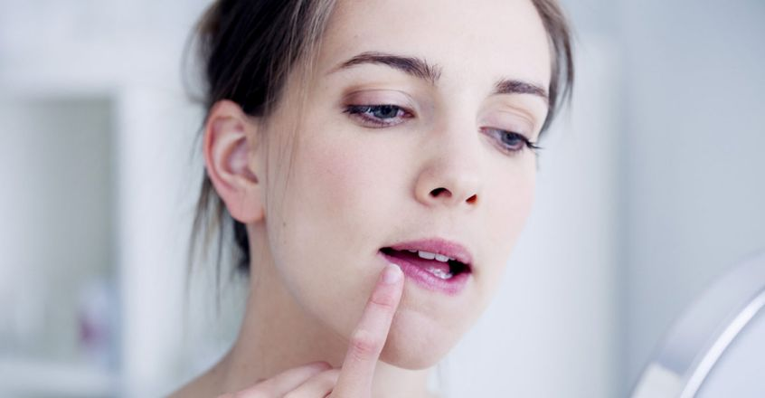 home-remedies-to-get-rid-of-chapped-lips