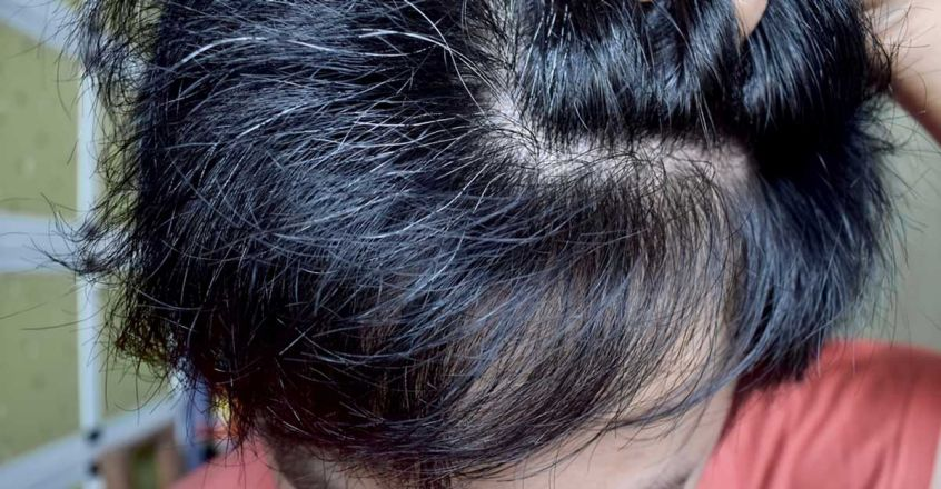 home-remedies-to-prevent-premature-greying-of-hair