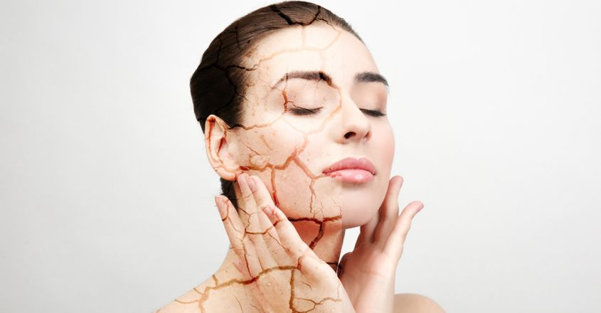 these-are-the-causes-of-dry-skin