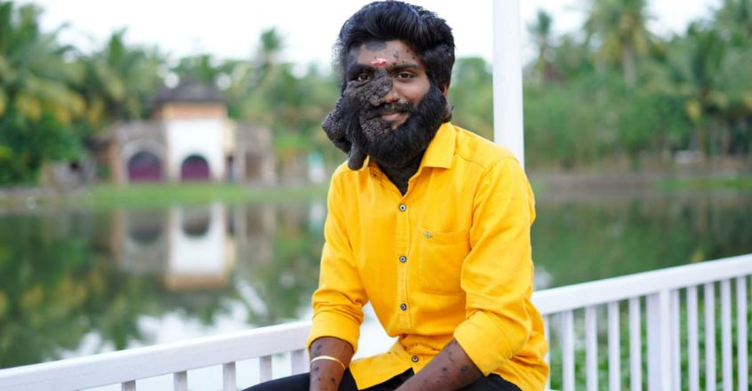 inspirational-story-of-prabhulal-who-suffered-with-freckles-in-face