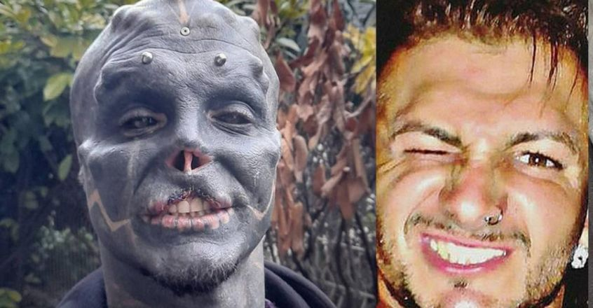 anthony-loffredo-removed-his-upper-lip-to-look-like-black-alien
