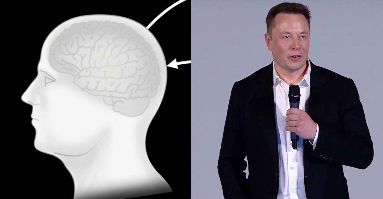 neuralink-presentation-elon-musk