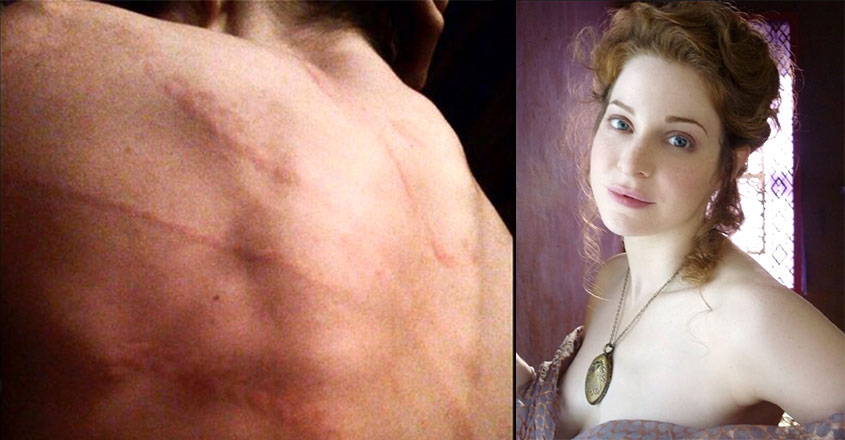 Esmé Bianco opens up about being a survivor of domestic abuse